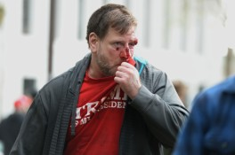 This Trump supporter is injured as sides clash at a dual rally for and against President Donald Trump at Martin Luther King Jr. Civic Center Park in Berkeley, Calif., on Saturday, March 4, 2017. The initial event was a March 4 Trump rally, but anti-Trump protesters were on hand to make their feelings known as well. (Dan Honda/Bay Area News Group)